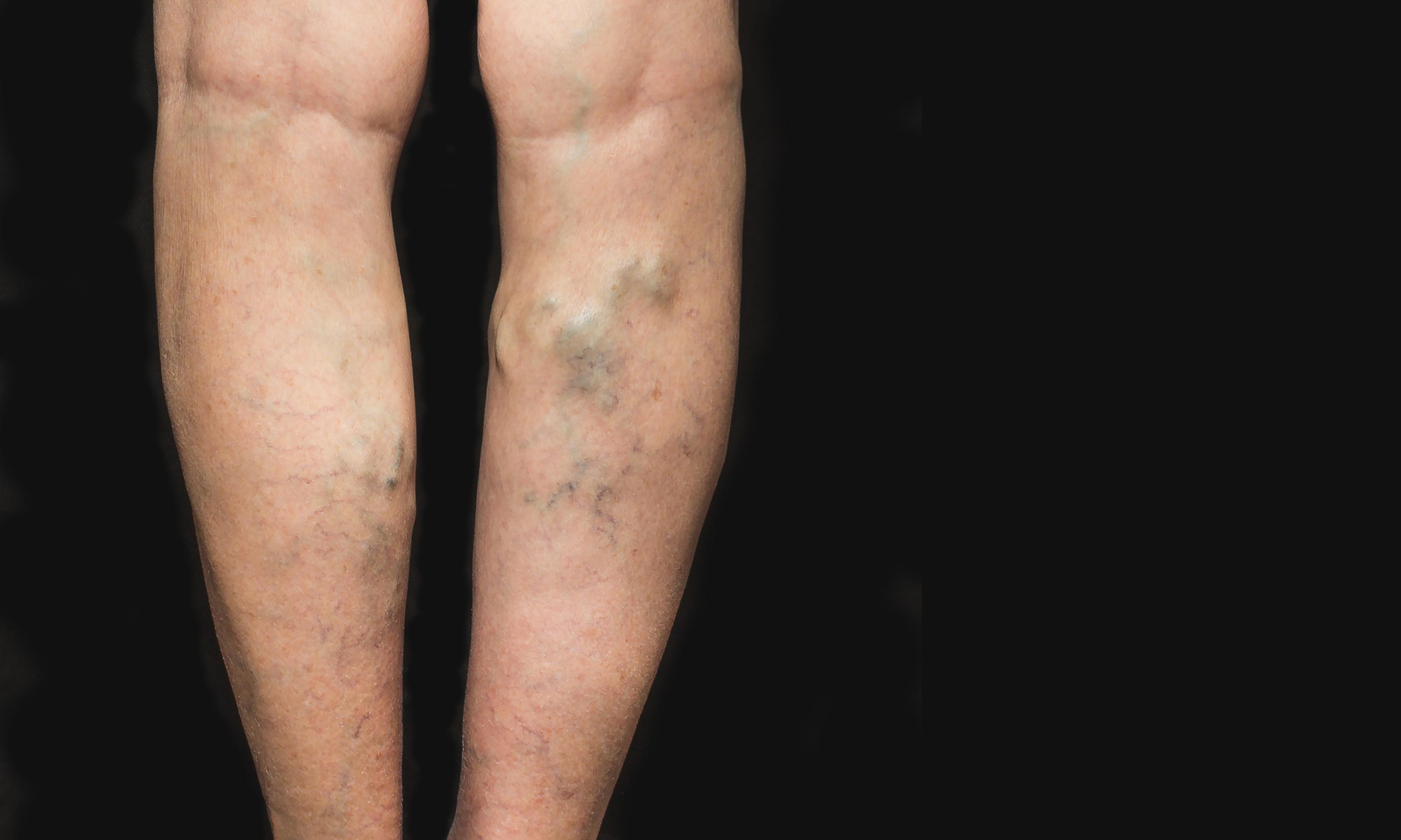 A visszér kezelése: krémekkel? - HáziPatika