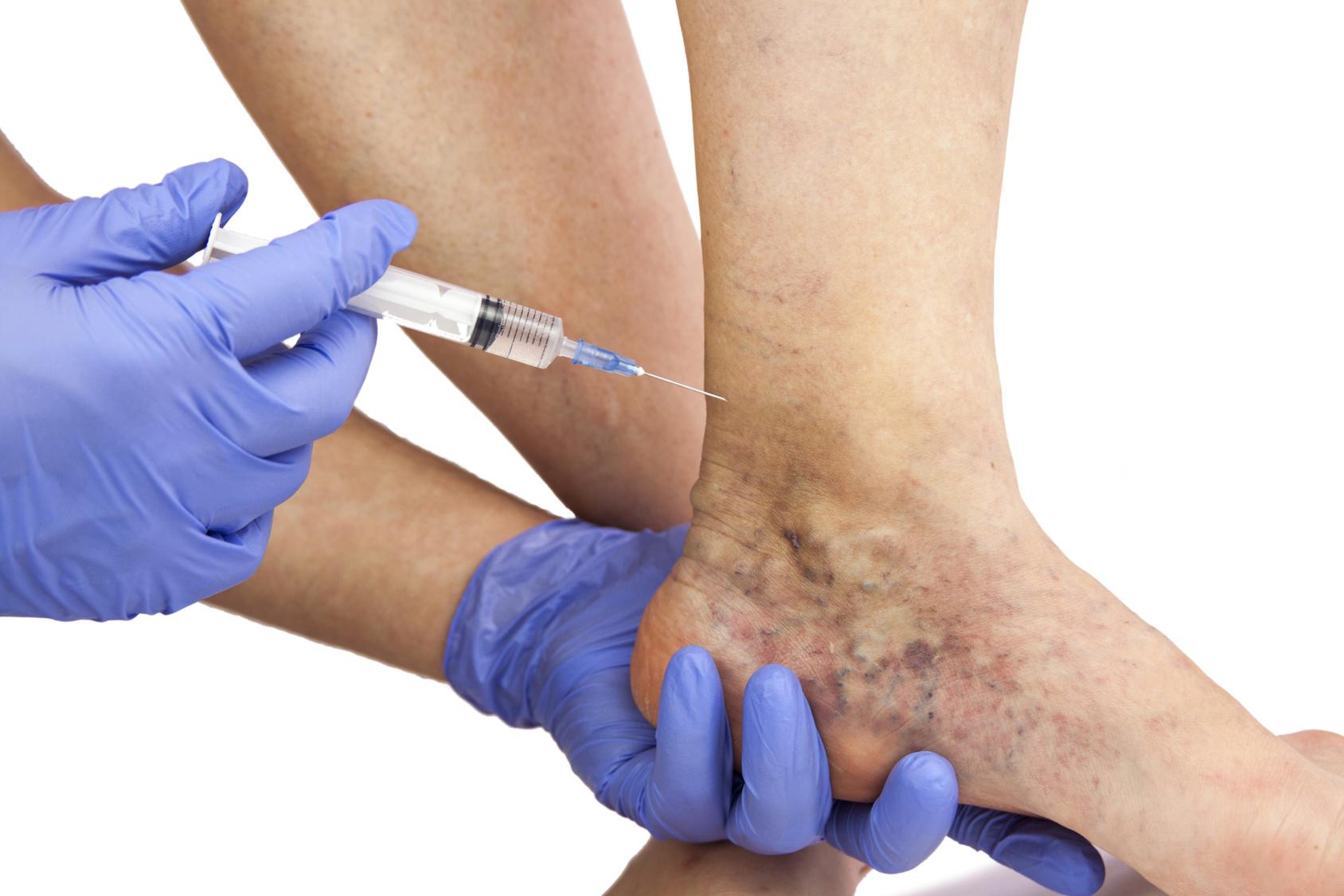 a lábak duzzanata terhesség alatt a visszerek miatt