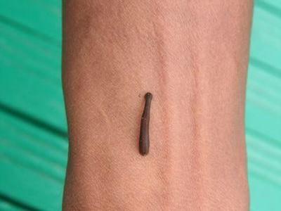 a lábak visszér kezelése alternatív módszerekkel szteroidok visszér
