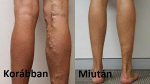 hatékony módszerek a varikózis kezelésére a lábakon