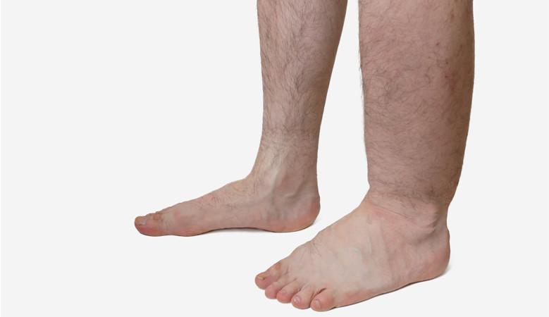 visszérrel az egyik láb megduzzad
