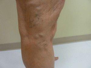 visszér kapilláris hálók a lábakon Valsalve teszt visszér