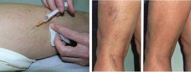 a szkleroterápia visszeres kezeléssel jár)