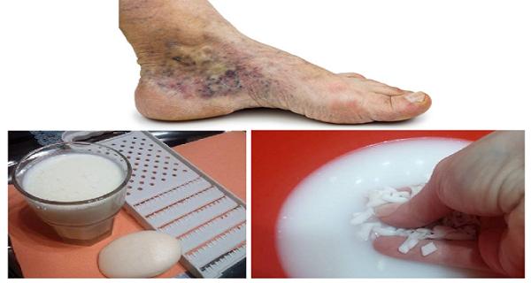 visszér thrombophlebitis alternatív kezelés