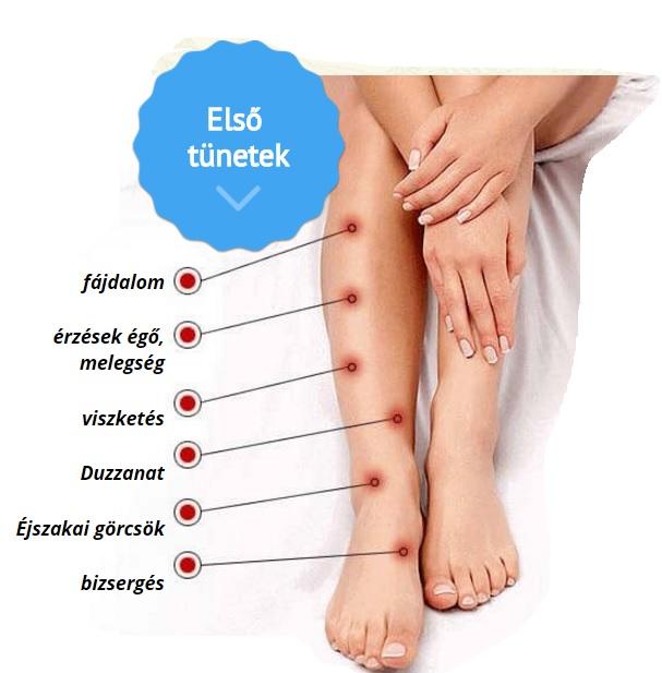 a varikózis megelőzése a lábon)