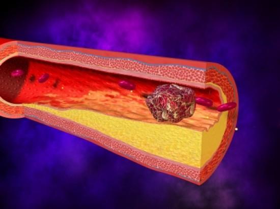 Életveszélyes lehet a magas vérlemezkeszám - HáziPatika
