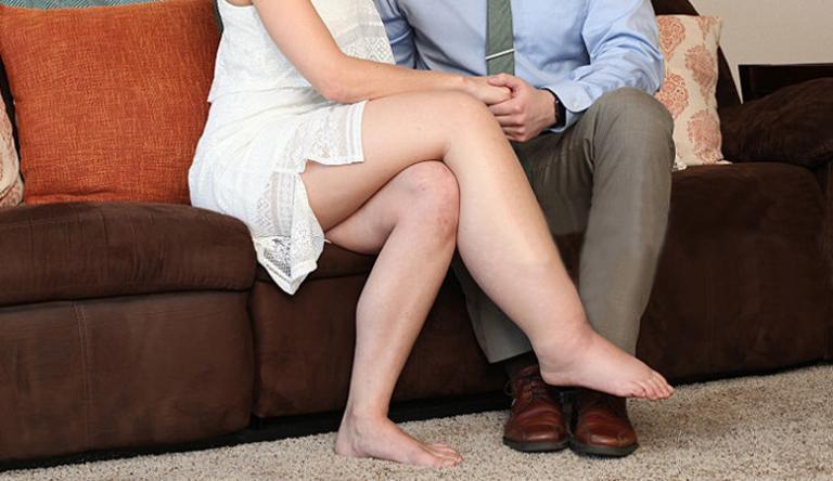 a láb megduzzad a visszérektől, mint kezelni)