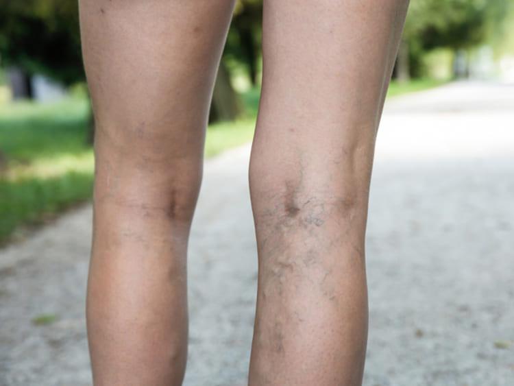 Visszeres lábat kezelni