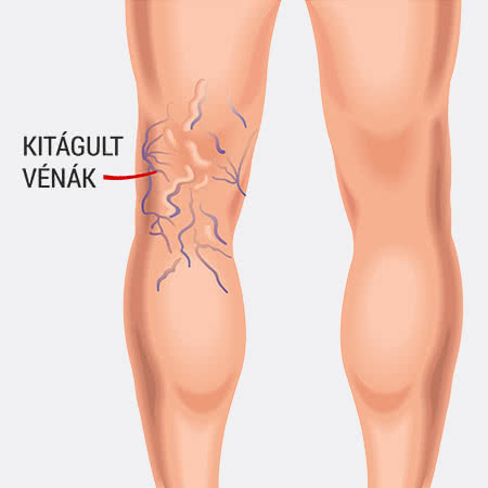 visszér és annak kezelése. a varikózistól elsötétült láb