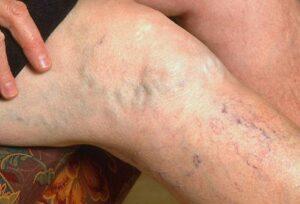 Sclerosis multiplex – a diagnózis leírása, okai és kezelése