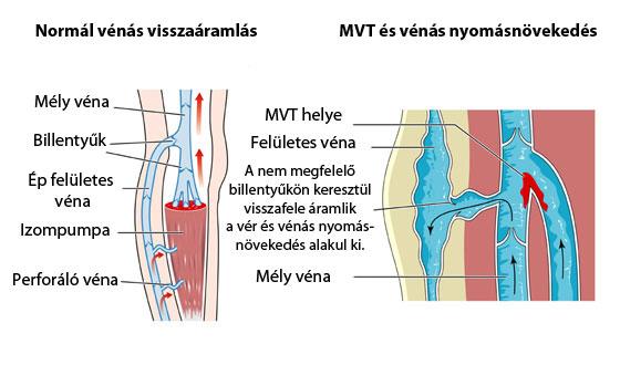 hogyan lehet elkerülni a visszér trombózisát