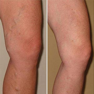 orvosság visszér a lábakon fotó