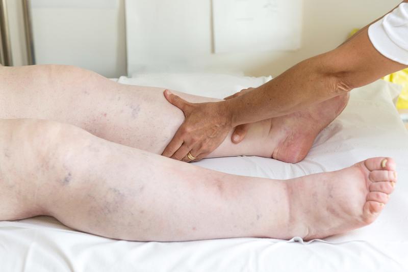 visszér, az egyik láb fáj