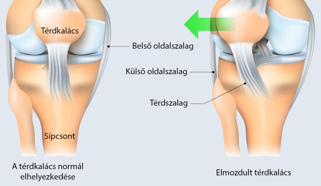 dörzsölés a lábaknál visszér