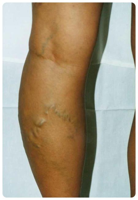 műtét után a visszerek eltávolítására fotó