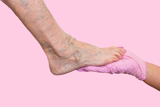 a lábak fájnak a visszér tablettáktól visszér kezelõ orvos kezeli