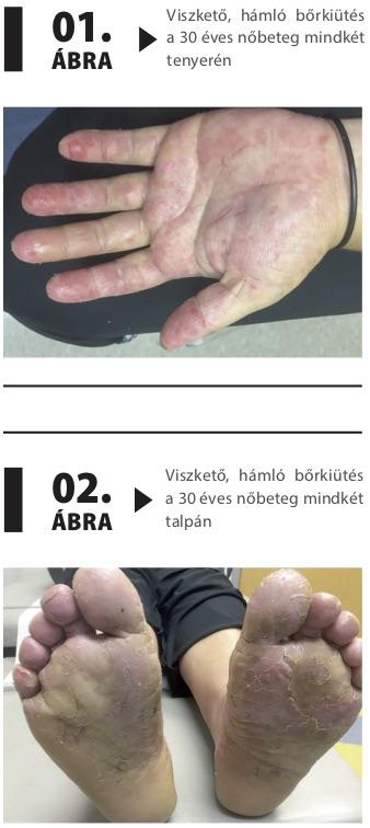 bőrkiütés a varikózisos lábakon)