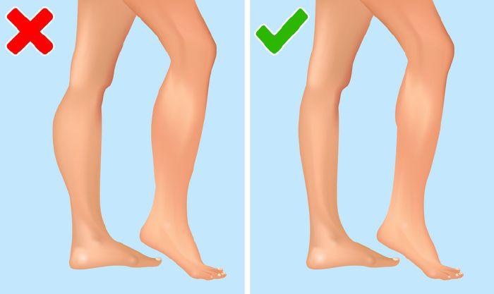 milyen tünetei vannak a lábak varikózisának