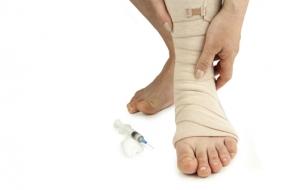 hirudoterápia thrombophlebitis és visszér ellen