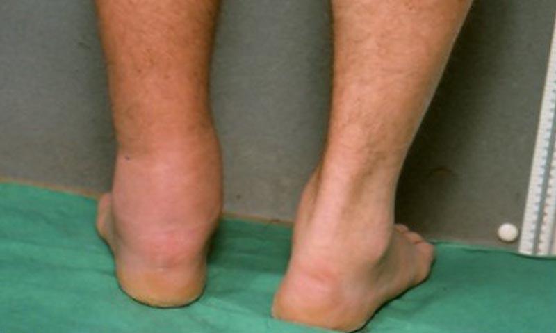 fotó a láb bekötéséről visszérrel)