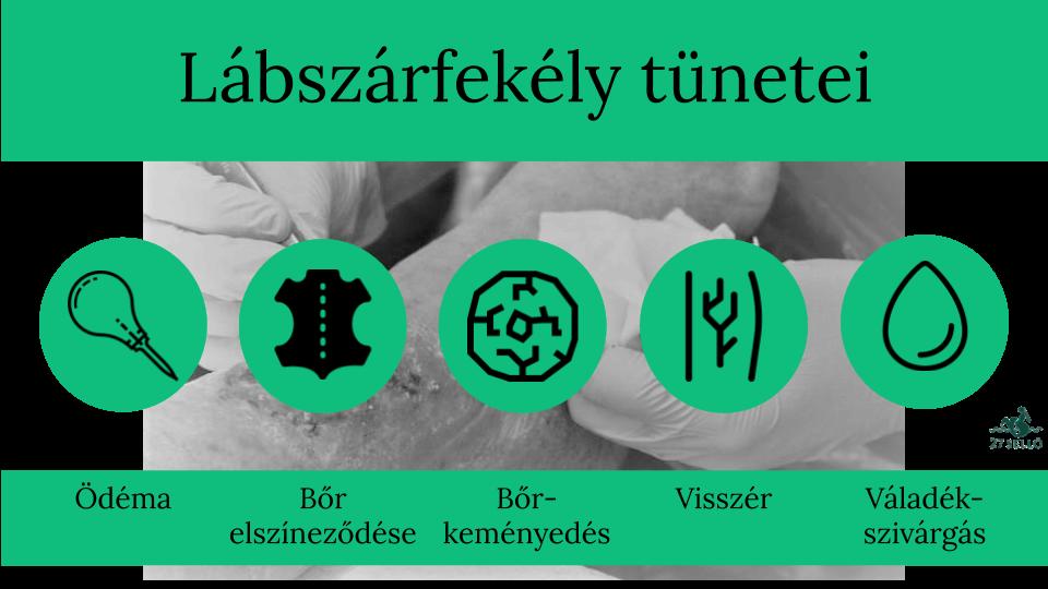 A visszérbetegségről - Egészségtüköpozitivemberek.hu