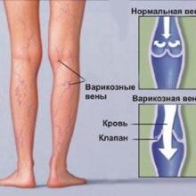 visszérgyulladás phlebodia kezelés)