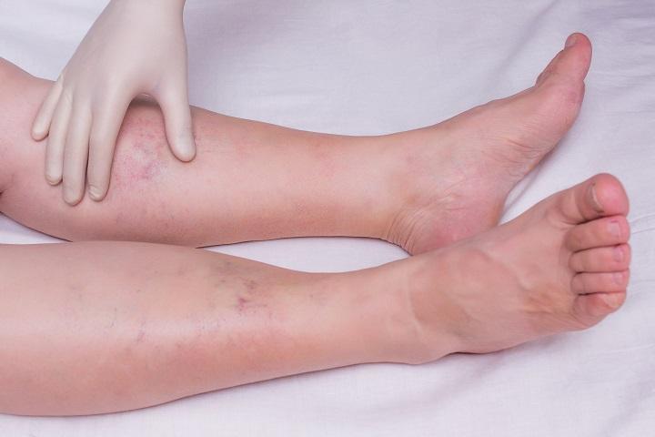 visszér visszér zúzódások ödéma a lábakon