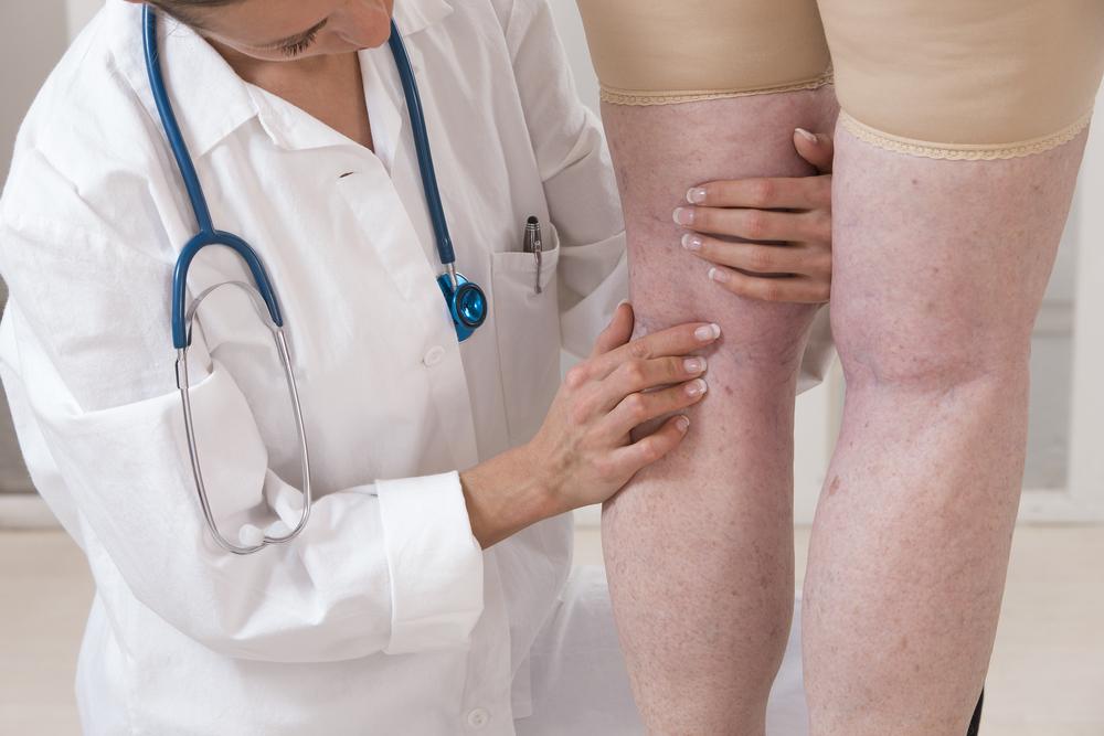 a lábak duzzanata belső visszérrel