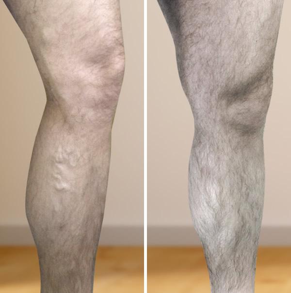 ortopéd térdmagasság visszér ellen