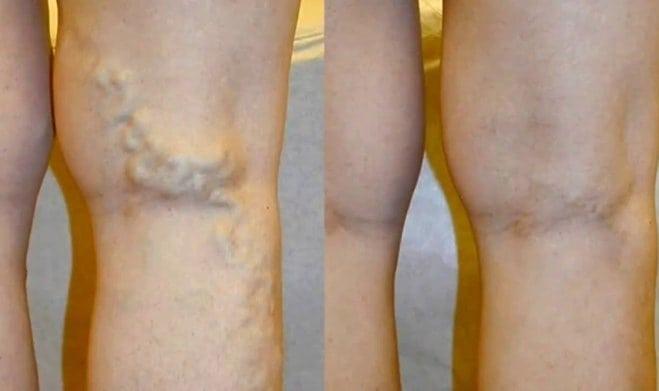 kezdeti visszér a lábak visszér kezelési terv