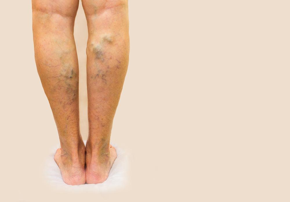 A nyelőcső visszereinek (oesophagus varicositas) kezelése