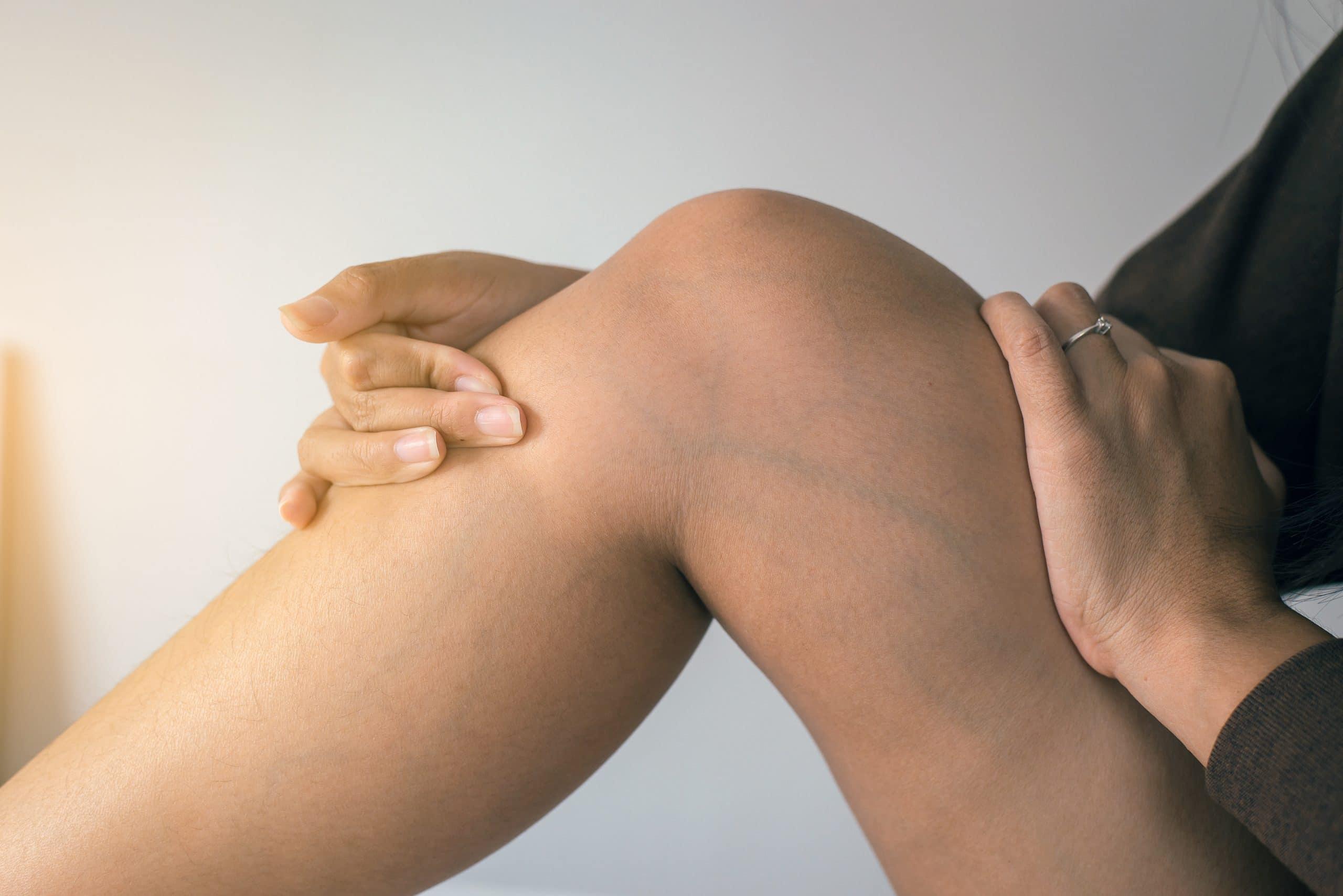 Tudnivalók a visszérről   A visszér tünetei, kezelése, megelőzése