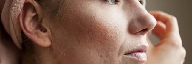 Argital Argiltubo arc és testmaszk ml