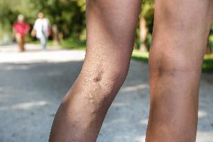 fotó visszér fekélyek a lábakon