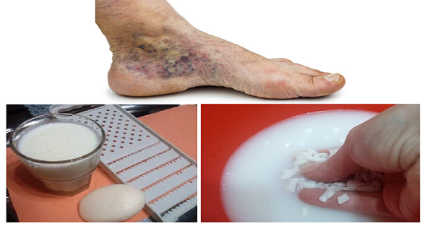 gyógymódok a visszér futtatására visszér és trombózis és kezelés
