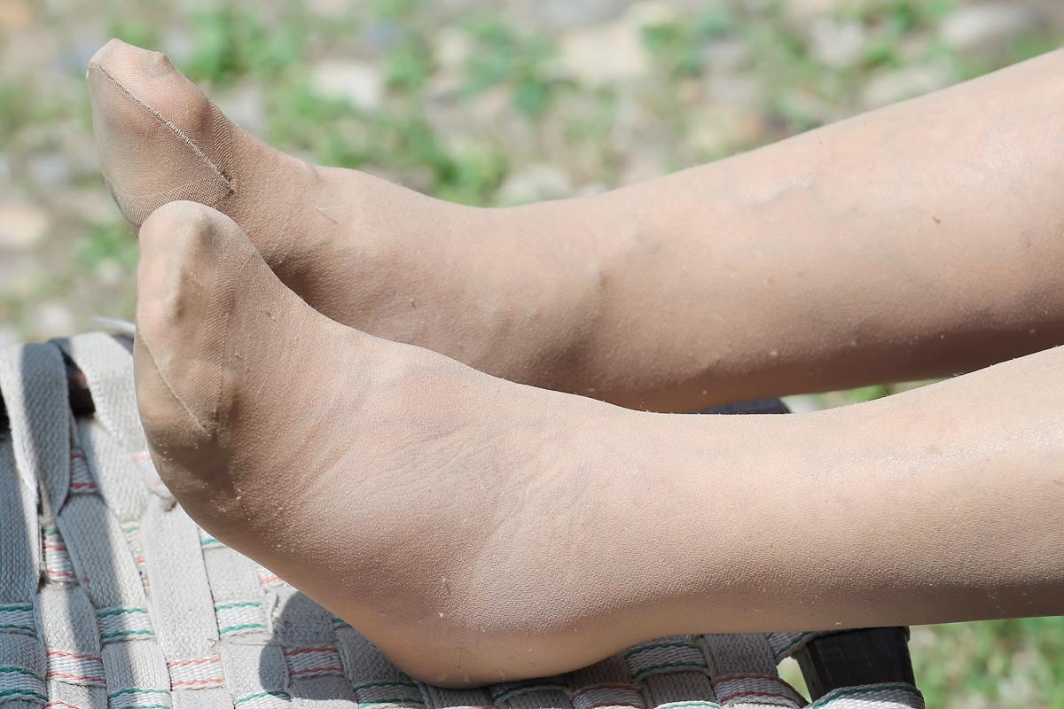 ha a visszér helye a lábakon fáj