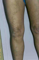 hány nappal a visszérműtét után visszér és thrombophlebitis különbségek