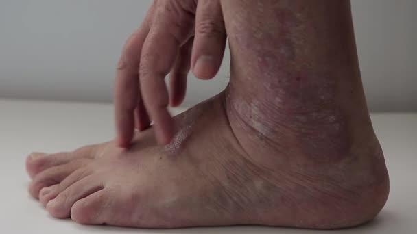 hogyan lehet bekötözni a lábát a visszeres műtét után)