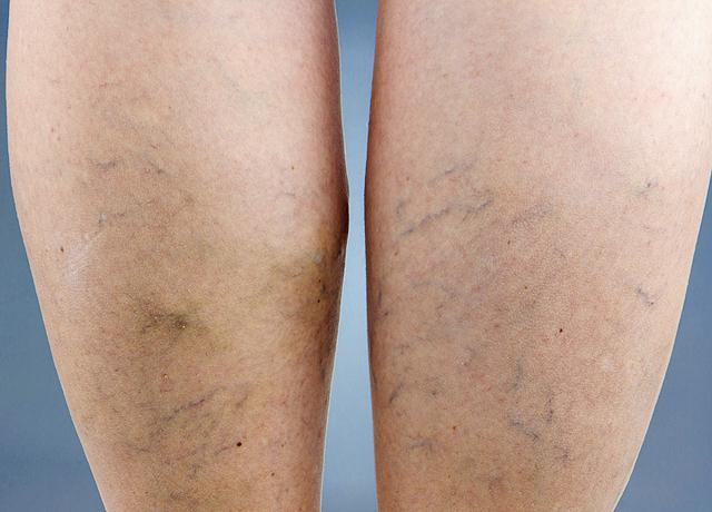 Visszér vagy trombózis: így deríthetjük ki A lábak kopaszsága visszeres