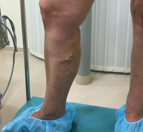Visszérműtét az alsó végtagon