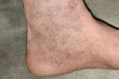 visszér és kapillárisok videó a varikózisról a lábakon