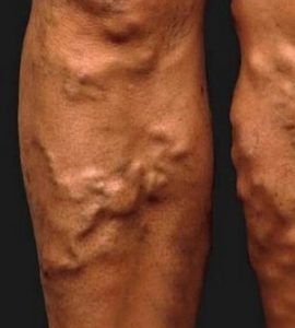visszér tünetei és kezelése férfiaknál