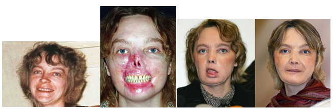 műtét a varikózis fején