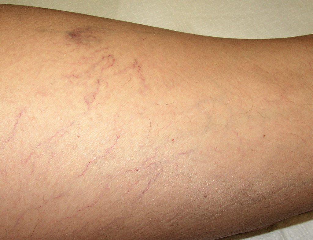 rúnák a visszér kezelésében fehér agyag a visszérből