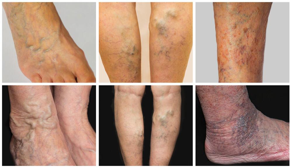 súlyos visszerek esetén a láb megduzzadt