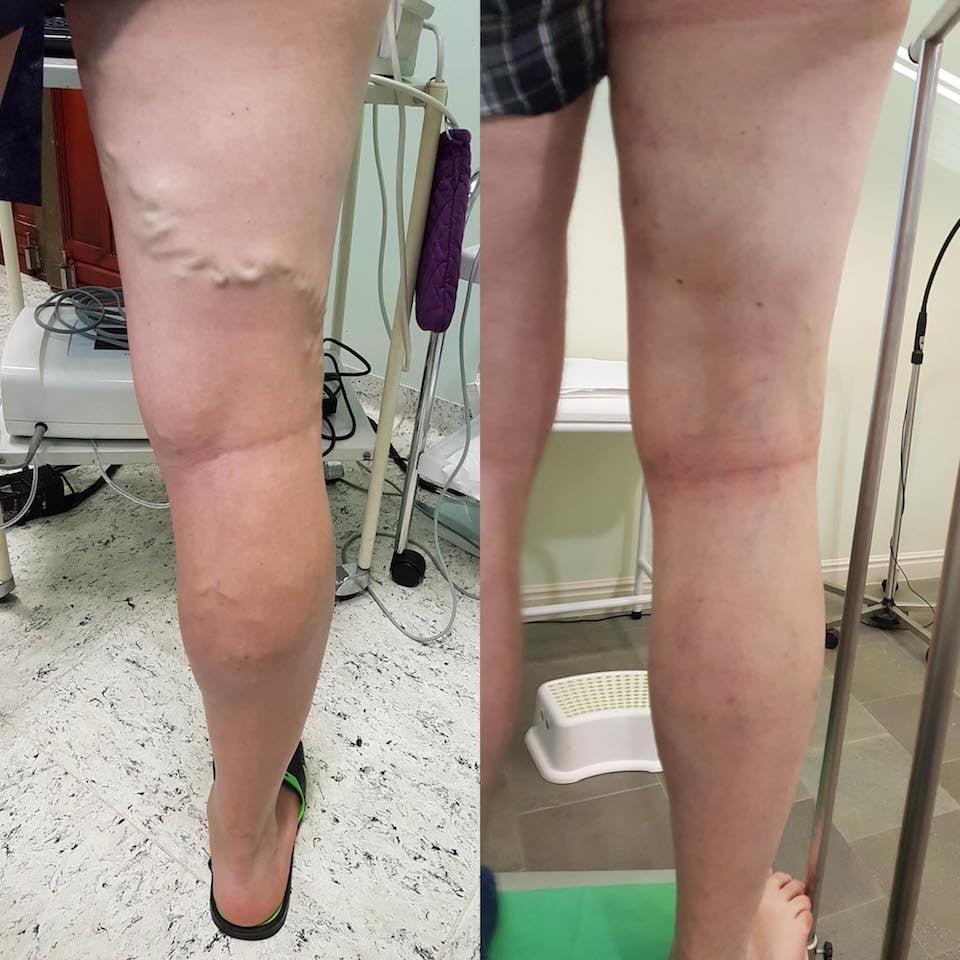 szkleroterápiás fotók visszér előtt és után)