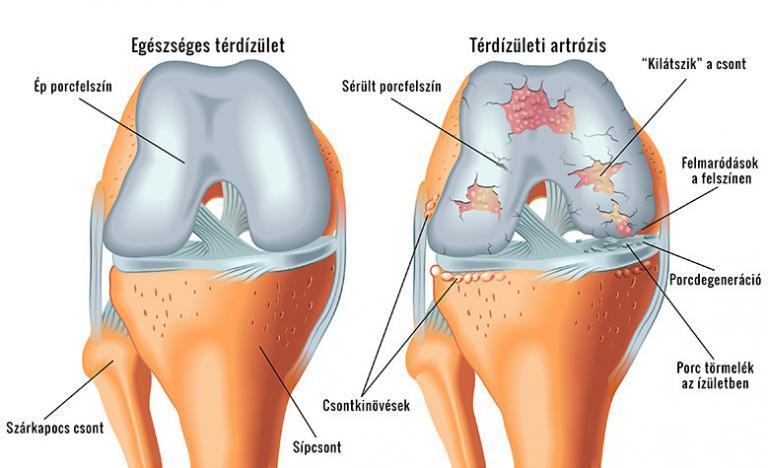 kezelés nyers burgonya visszérrel térd fáj a visszér mit kell tenni