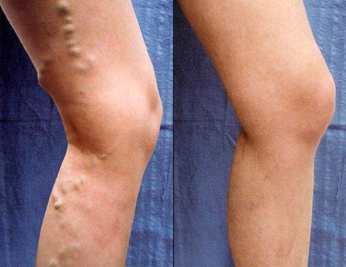 visszér egy érsebésznek kenőcsök a varikózis ellen a lábakon