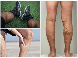 visszér mindkét lábán