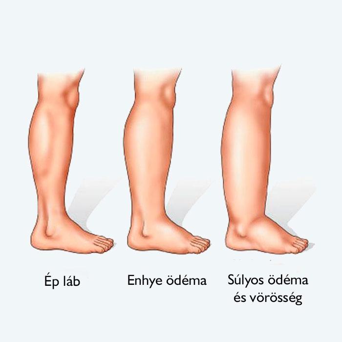 kenőcs a varikózisra a lábakon